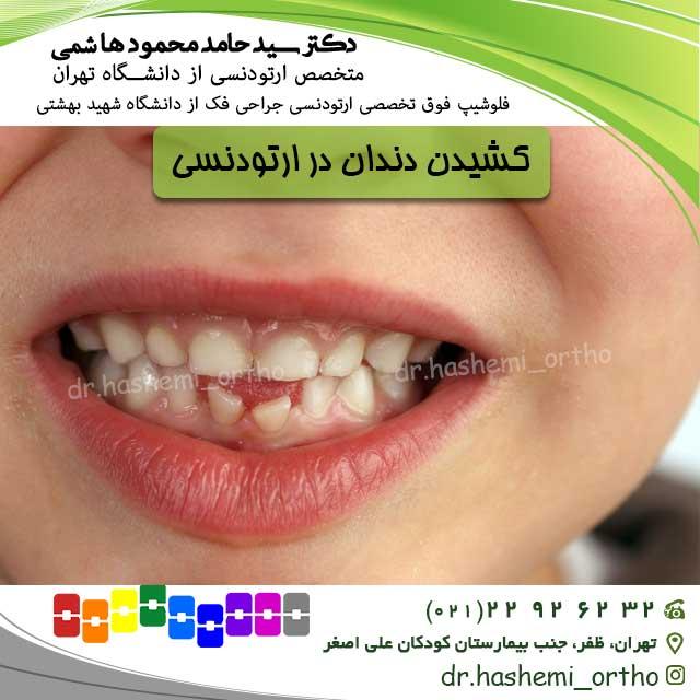 کشیدن-دندان-ارتودنسی