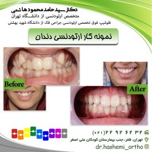 نمونه-کار-ارتودنسی-دندان