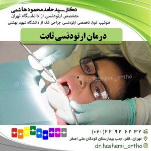 درمان-ارتودنسی-ثابت